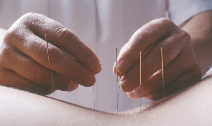 Acupuntura pode aliviar as dores do câncer, segundo revisão de estudos 1