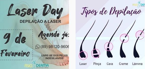 FisioDerma começará a trabalhar com depilação a laser a partir do dia 09 de fevereiro; Confira os benefícios e agende a sua depilação 3