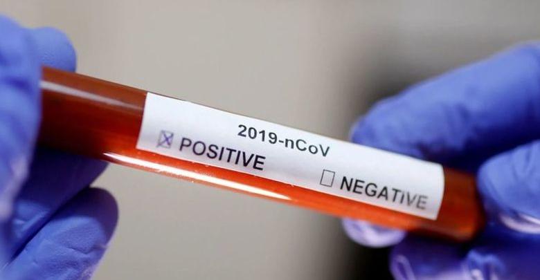 COVID-19: Secretaria de Saúde confirma primeiro caso de Coronavírus em Picos 1