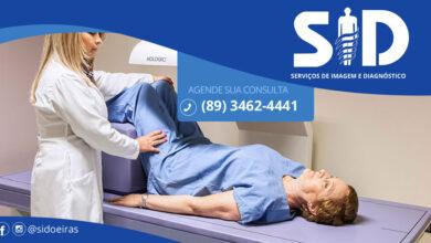 SID - Oeiras realiza exames de Densitometria Óssea 4