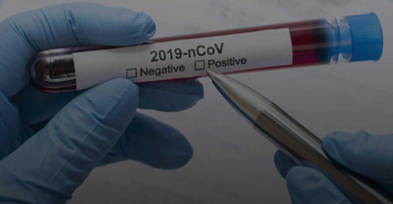Oeiras registra 22 casos positivos de covid-19 nesta terça-feira 1