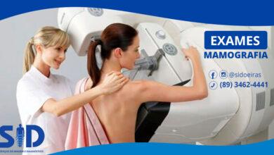 Exames de mamografia em Oeiras 3