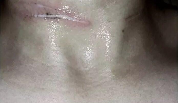 Simplício Mendes: Estudante de 18 anos tem pescoço e dedo cortados por linha de cerol 1